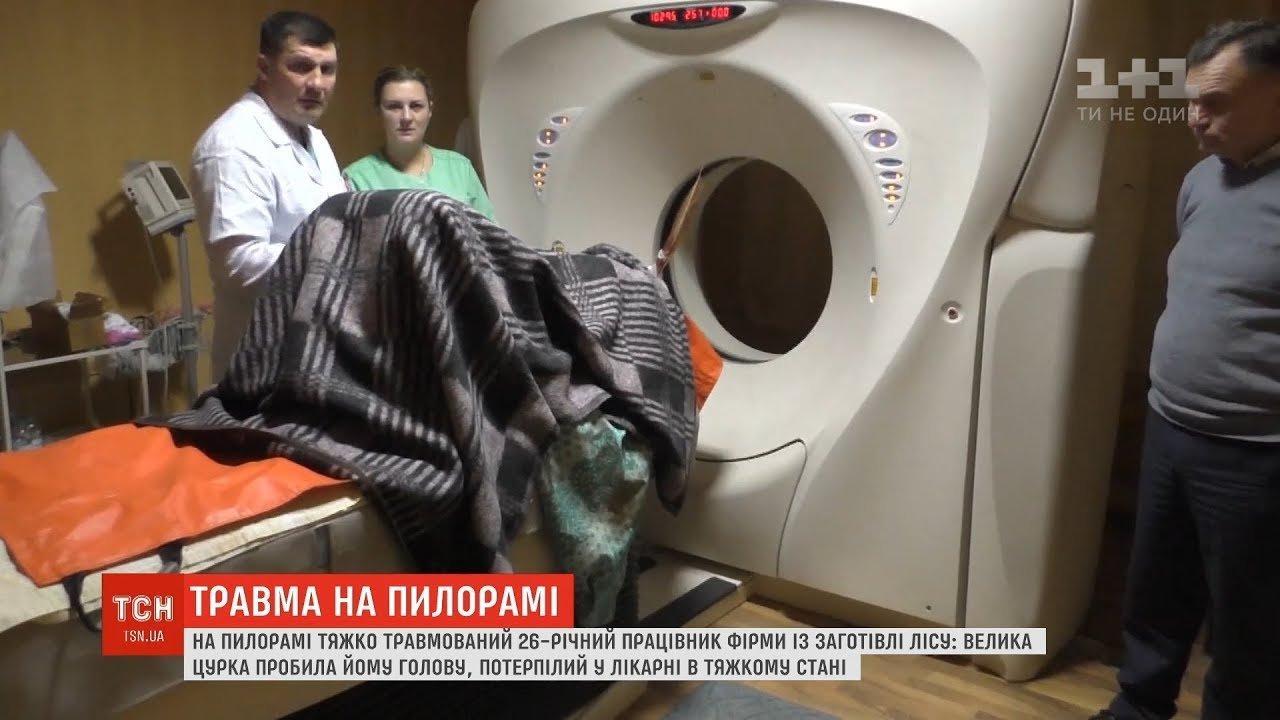 Шматком дошки пробило голову: працівнику пилорами на Буковині видалили око (відео)